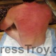 Freshly whipped back by Mistress Troy in her New York City dungeon